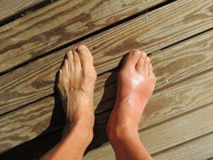 Closeup of sore, swollen feet
