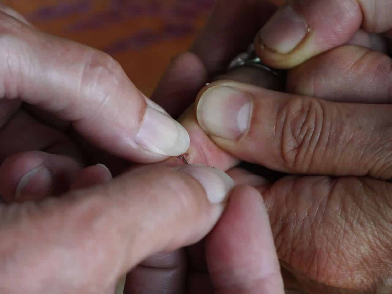 Closeup of wound on a toe